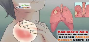 Kadınların Asla Görmezden Gelmemeleri Gereken Akciğer Kanseri Belirtileri