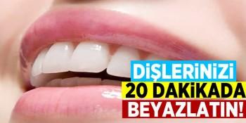 20 dakikada Dişleri Beyazlatan Bu Yönteme Çok Şaşıracaksınız!